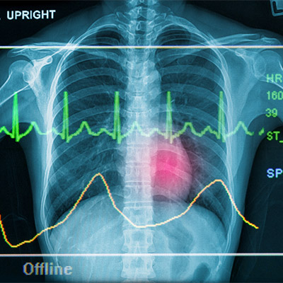 Heartbeat, pulse, fast rate, real sound