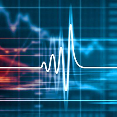 Heartbeat, simulated - 01