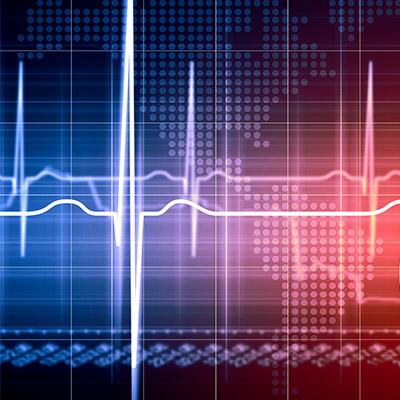 Heartbeat, simulated - 02